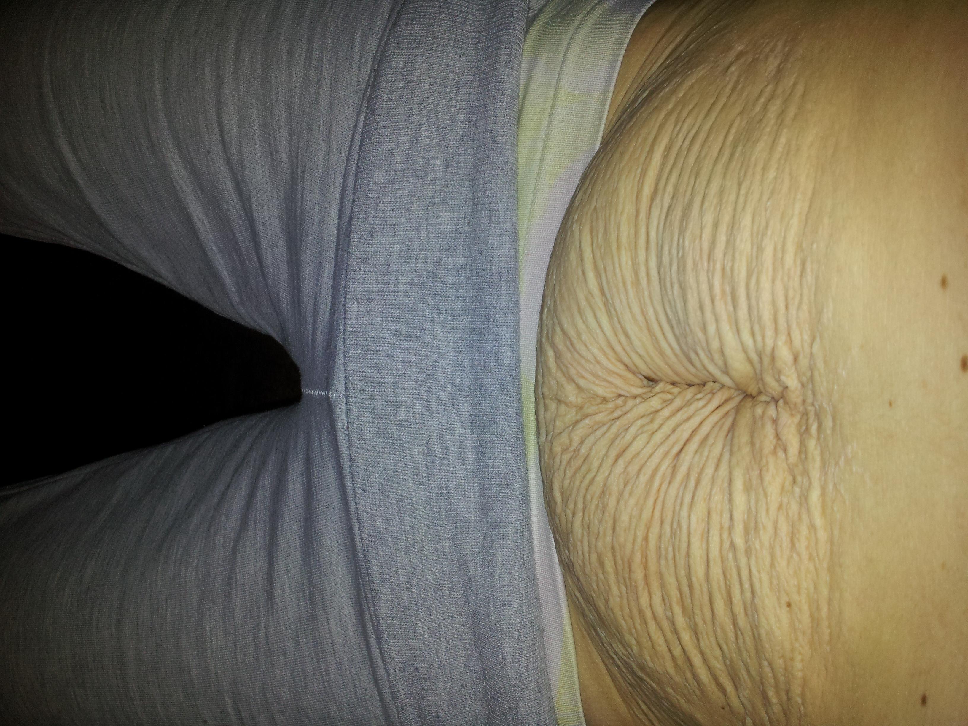 underliv före och efter förlossning